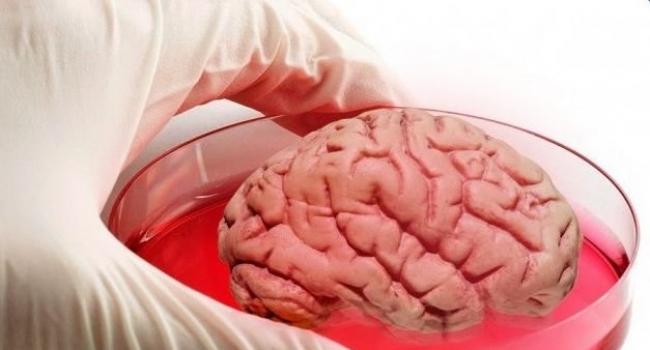 Արտակարգ. Տղամարդու ուղեղում հարյուրավոր որդեր են առաջացել